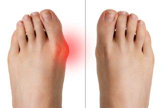 انحراف شست پا (Hallux valgus) چیست و چگونه درمان می شود؟